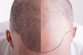 male hair loss treatment