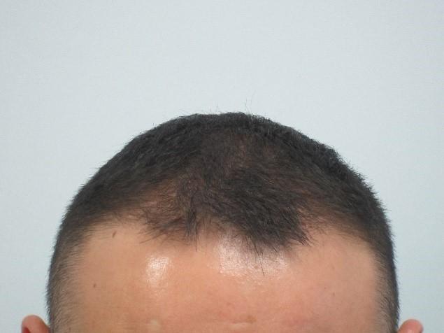 Mens-Hair-Loss-After