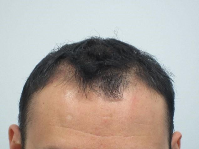 Mens-Hair-Loss-Before