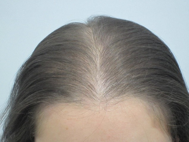 After: Women's Hair Loss