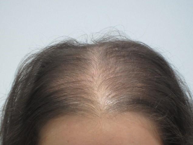 Before: Women's Hair Loss