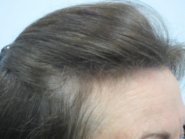 Before: Women's Hair Thinning