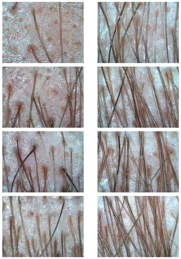 Before and After Hair Loss Treatments Microscopic Images