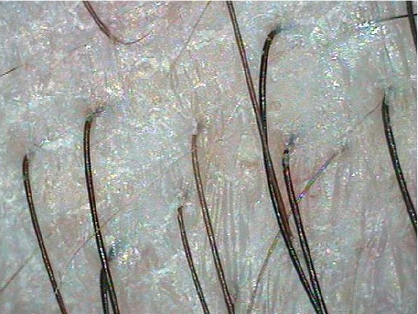 Microscopic-Before