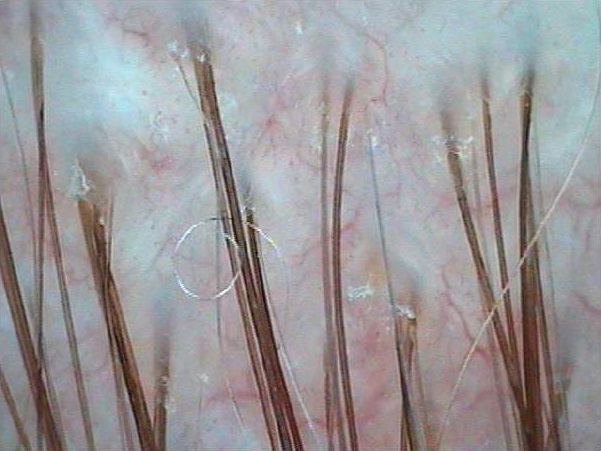 Before: Microscopic - Hair Loss Treatments