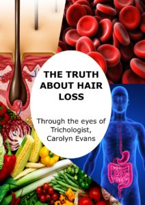 Carolyn Evans-Frost the Truth About Hair Loss eBook