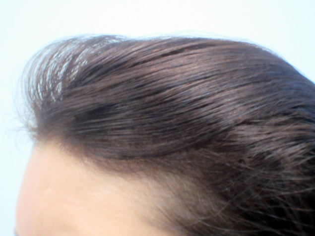 Before: Women's Hair Loss