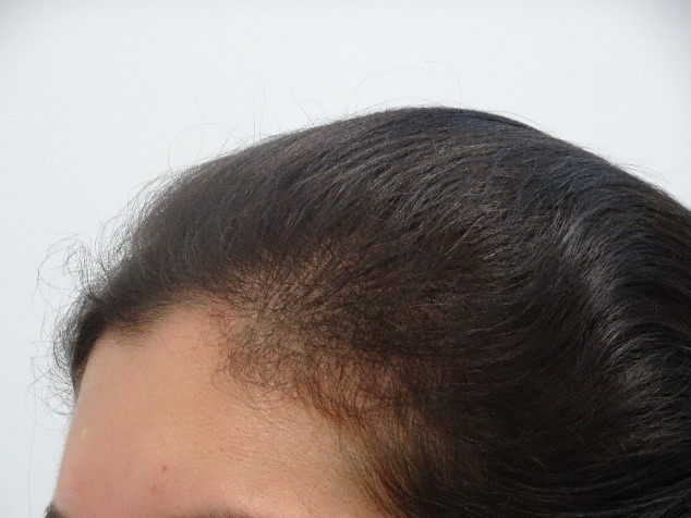 Women's Hair Loss Treatment Story with Absolique Trichologist Brisbane