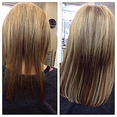 absolilque hair replacement services